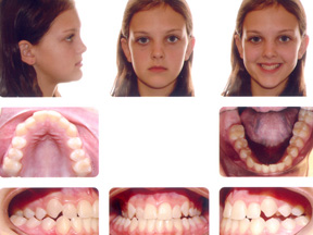 Orthodontic Photographs